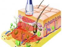 Laser wytwarzający falę fotomechaniczna w tkankach podskórnych